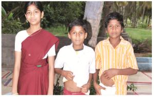 Children who underwent appendicectomy showing their scar