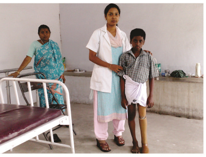 An artificial leg is provided